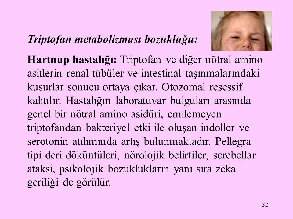 Triptofan metabolizması bozukluğu: