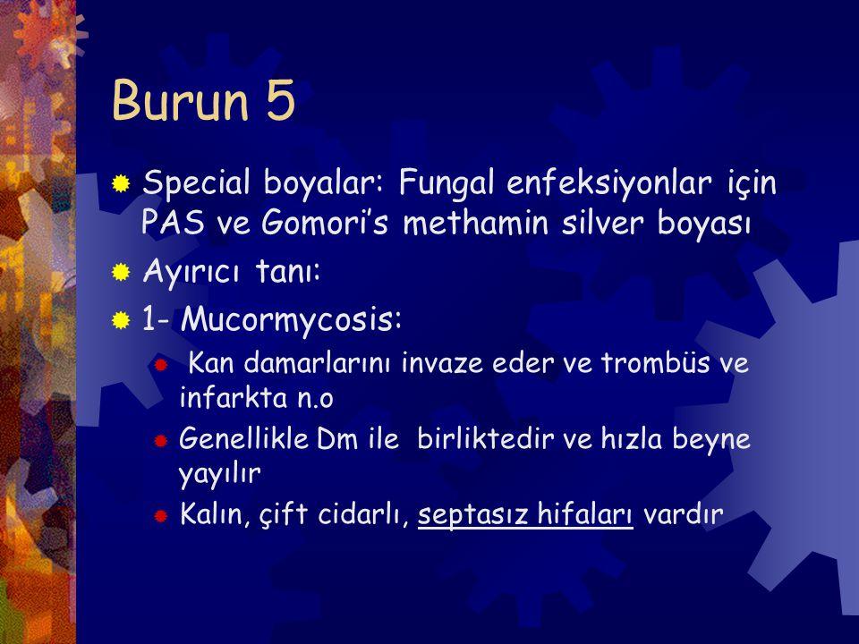 Burun 5 Special boyalar: Fungal enfeksiyonlar için PAS ve Gomori's methamin silver boyası. Ayırıcı tanı:
