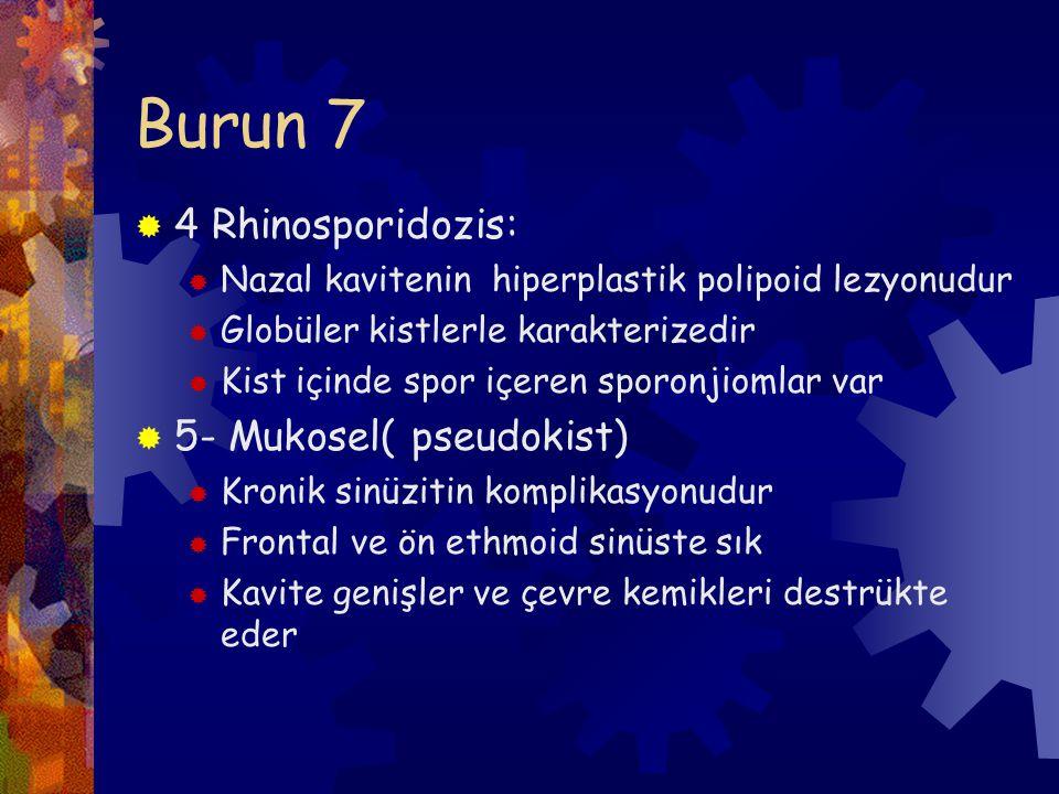 Burun 7 4 Rhinosporidozis: 5- Mukosel( pseudokist)