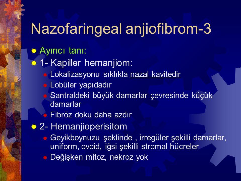 Nazofaringeal anjiofibrom-3