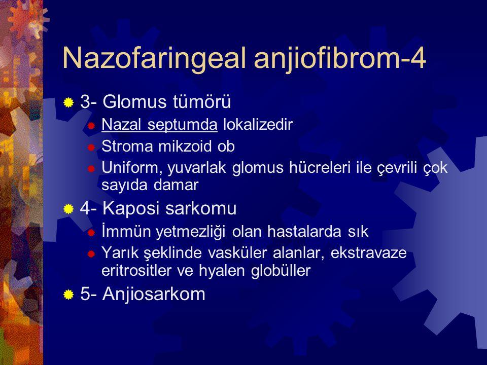 Nazofaringeal anjiofibrom-4