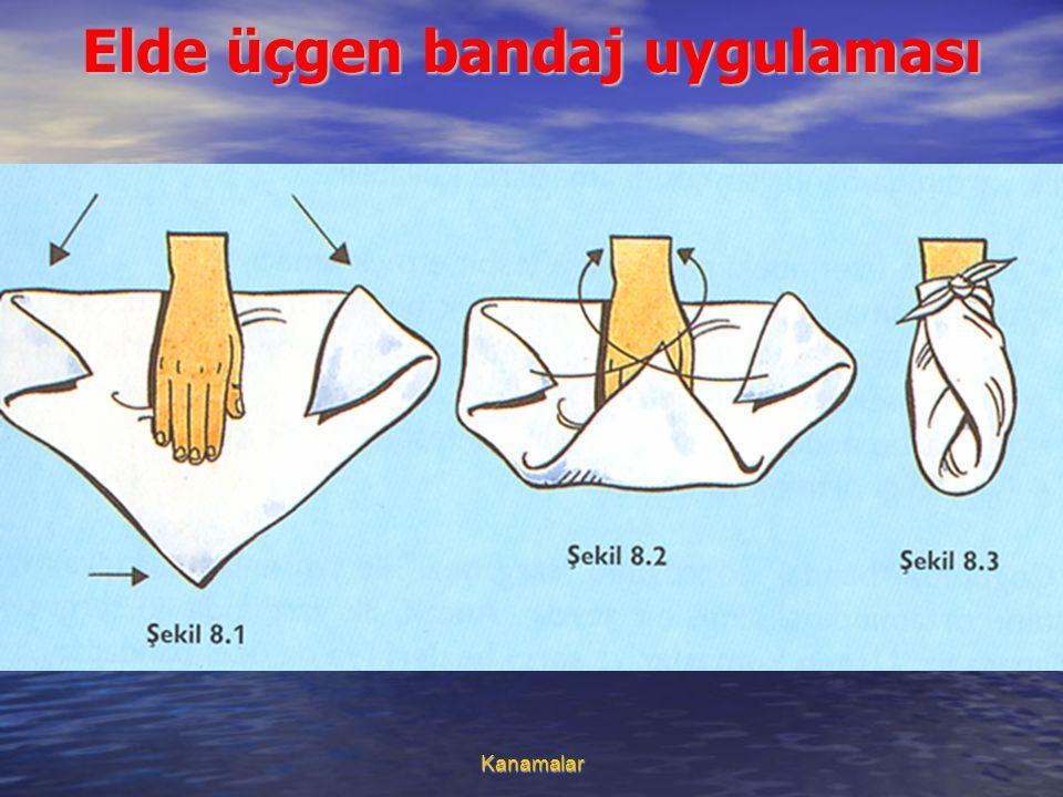 Elde üçgen bandaj uygulaması