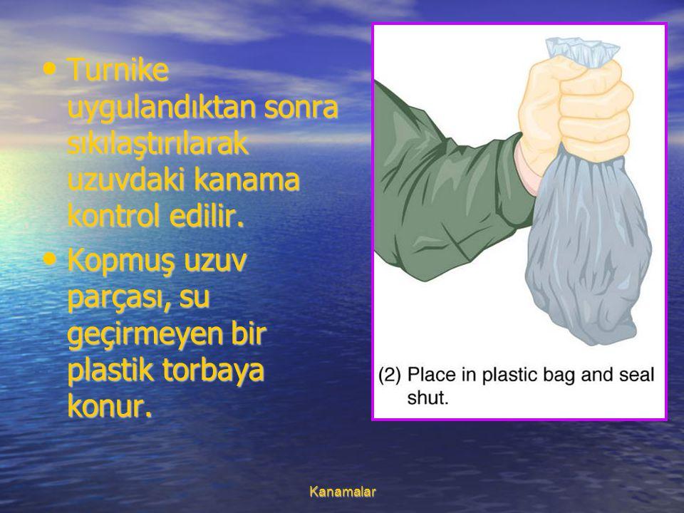 Kopmuş uzuv parçası, su geçirmeyen bir plastik torbaya konur.