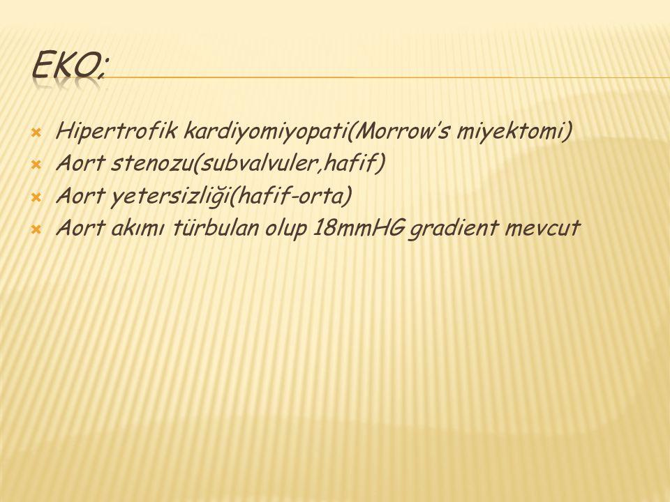 eko; Hipertrofik kardiyomiyopati(Morrow's miyektomi)