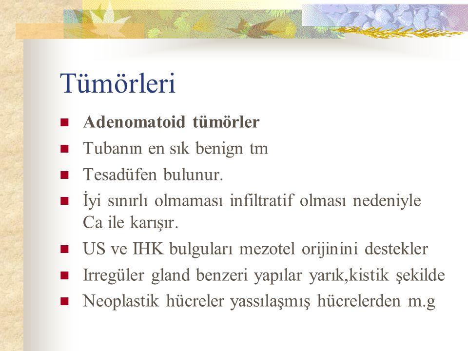 Tümörleri Adenomatoid tümörler Tubanın en sık benign tm