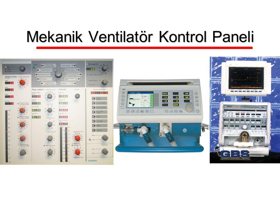 Mekanik Ventilatör Kontrol Paneli