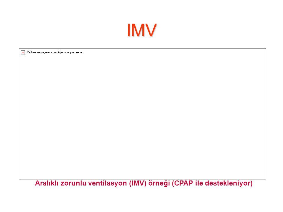 IMV Aralıklı zorunlu ventilasyon (IMV) örneği (CPAP ile destekleniyor)