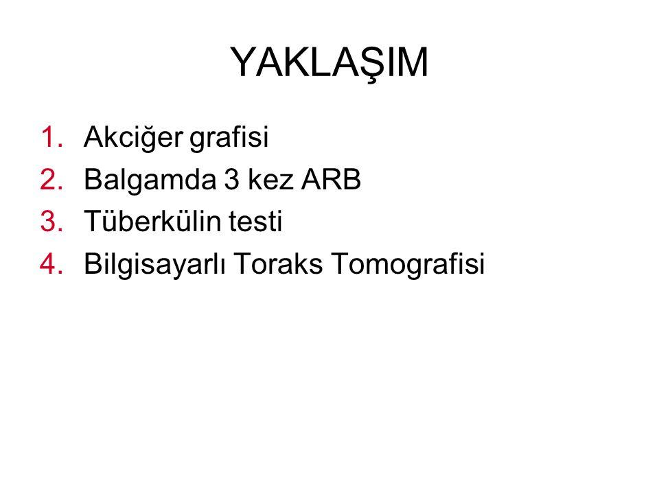 YAKLAŞIM Akciğer grafisi Balgamda 3 kez ARB Tüberkülin testi