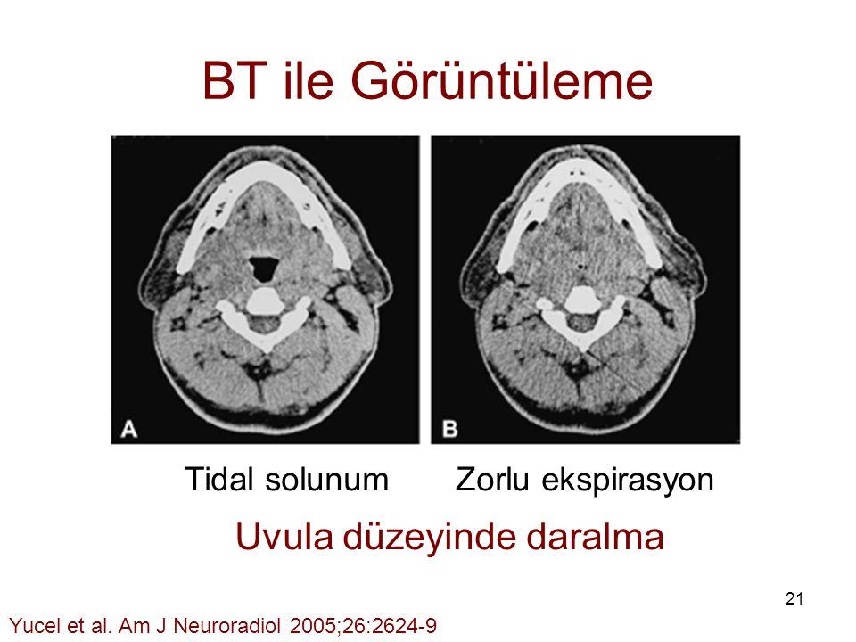 BT ile Görüntüleme Uvula düzeyinde daralma