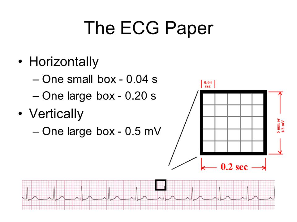 The ECG Paper Horizontally Vertically One small box - 0.04 s