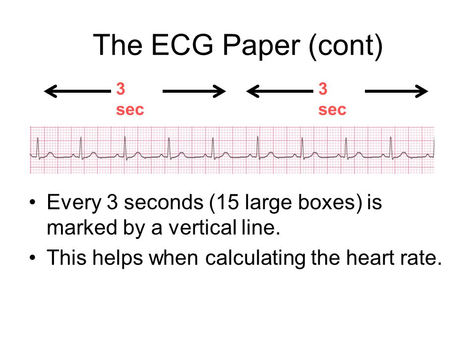 The ECG Paper (cont) 3 sec. 3 sec. Every 3 seconds (15 large boxes) is marked by a vertical line.
