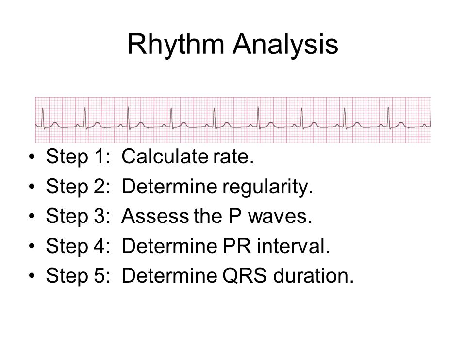 Rhythm Analysis Step 1: Calculate rate. Step 2: Determine regularity.