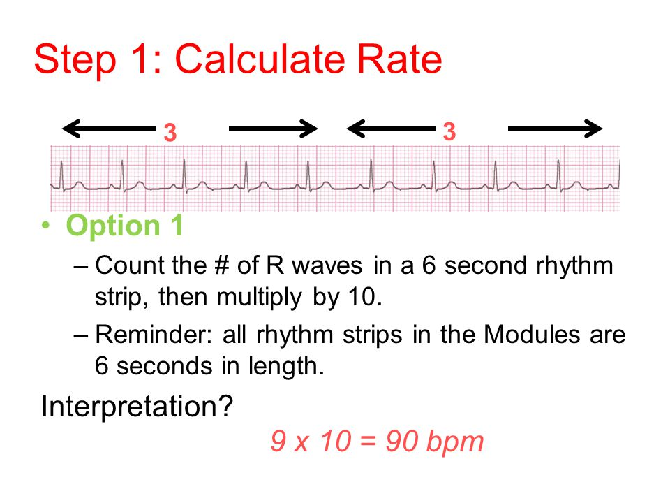 Step 1: Calculate Rate Option 1 Interpretation 9 x 10 = 90 bpm 3 sec
