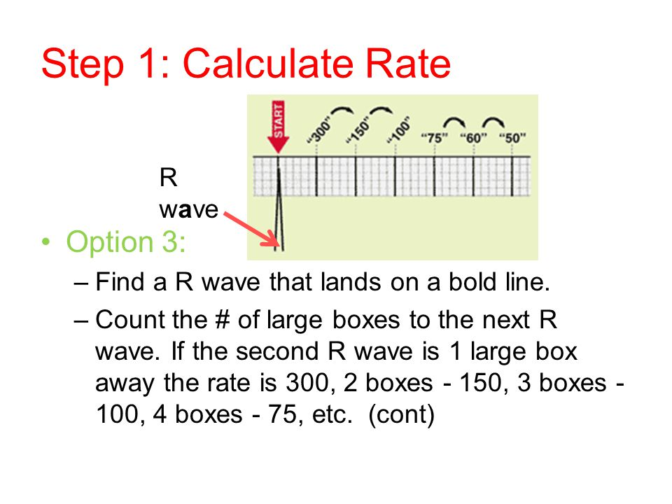 Step 1: Calculate Rate Option 3: R wave