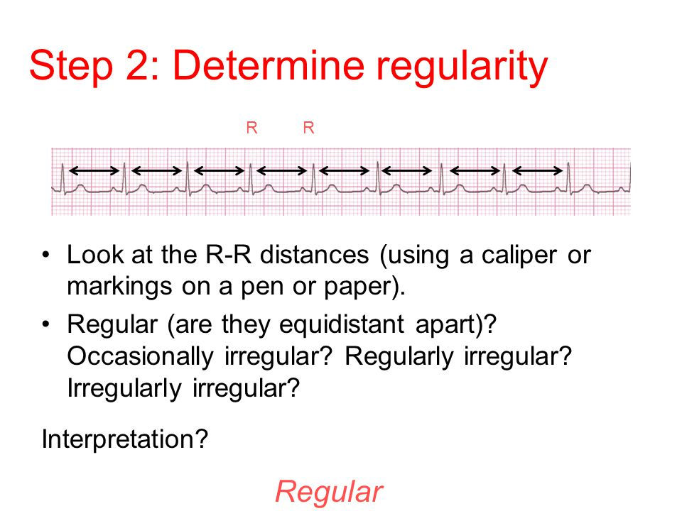 Step 2: Determine regularity