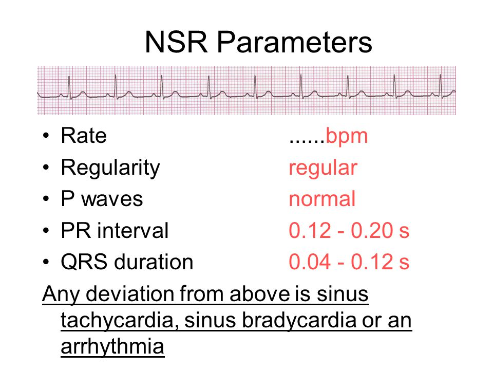 NSR Parameters Rate ......bpm Regularity regular P waves normal