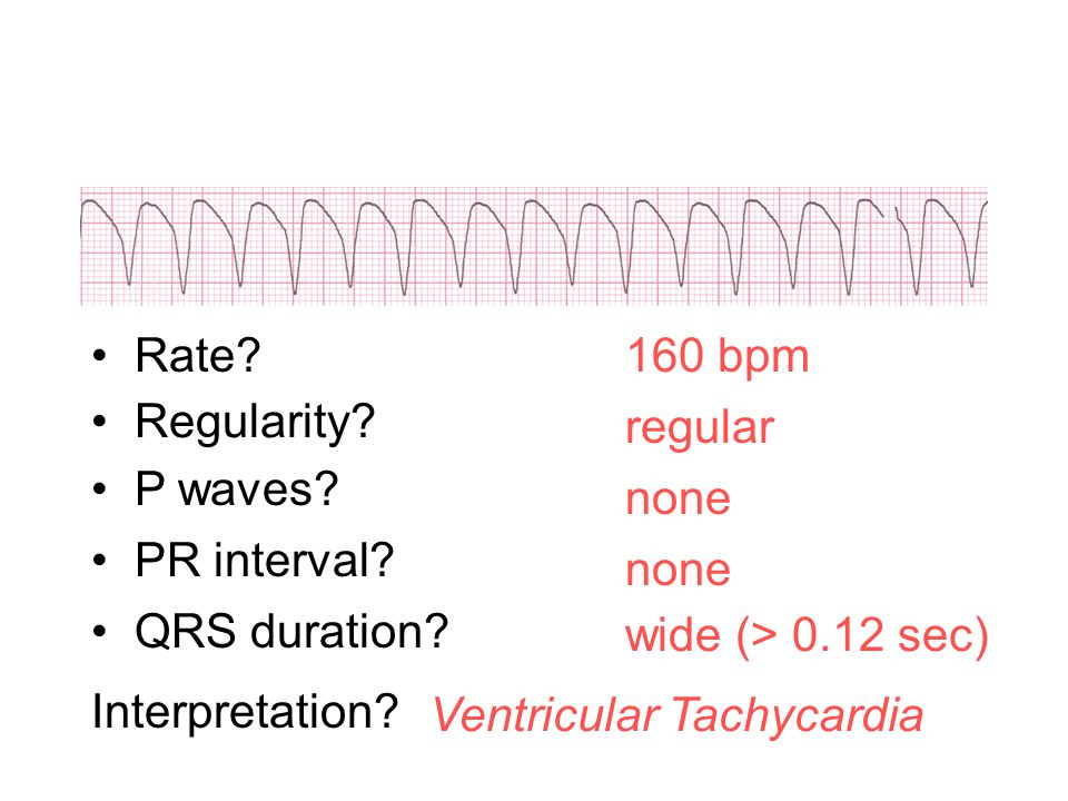 Rate 160 bpm. Regularity regular. P waves none. PR interval none. QRS duration wide (> 0.12 sec)