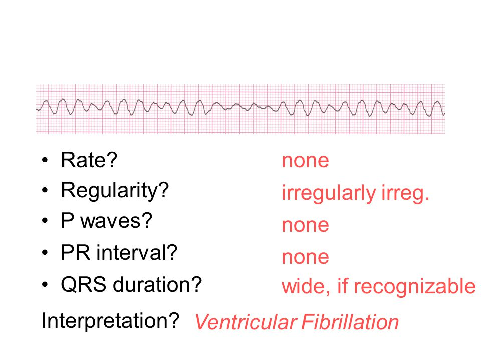 Rate none. Regularity irregularly irreg. P waves none. PR interval none. QRS duration wide, if recognizable.