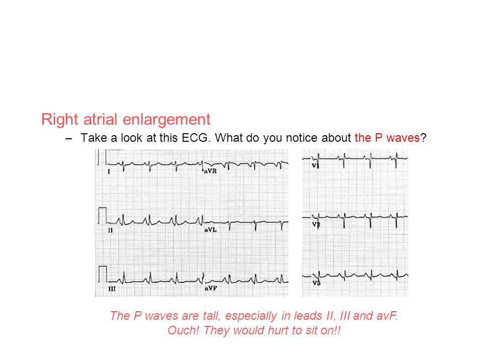 Right atrial enlargement