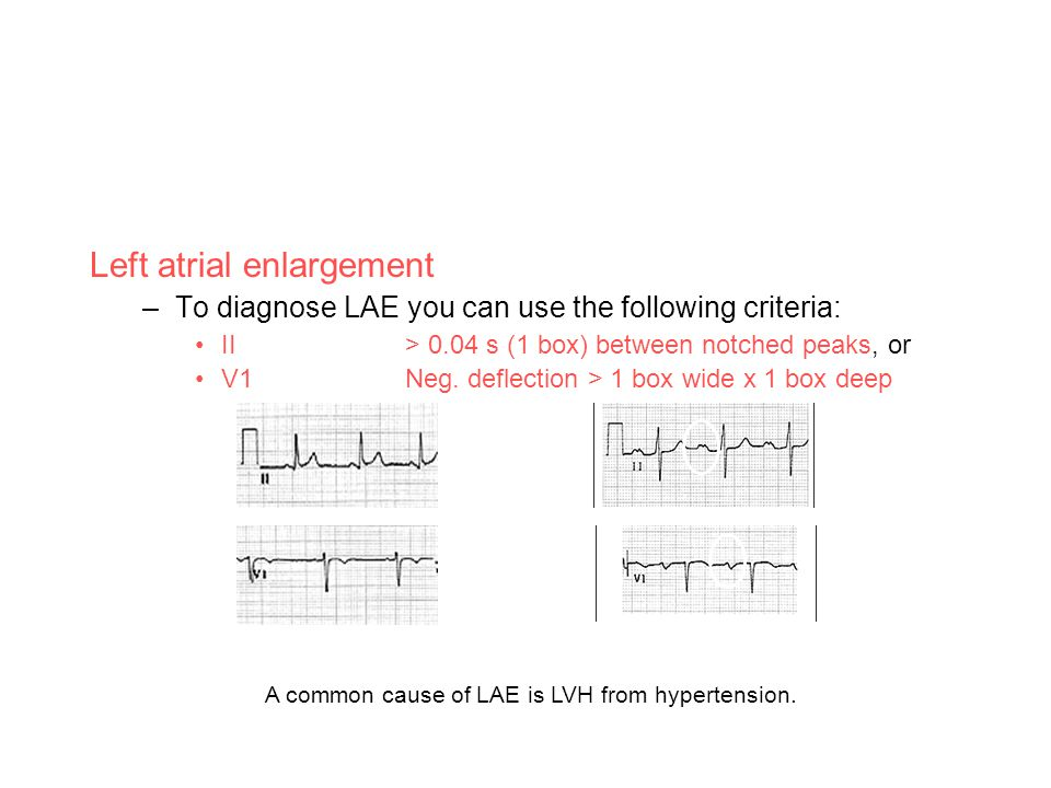 Left atrial enlargement