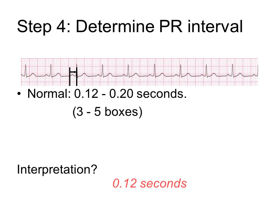 Step 4: Determine PR interval