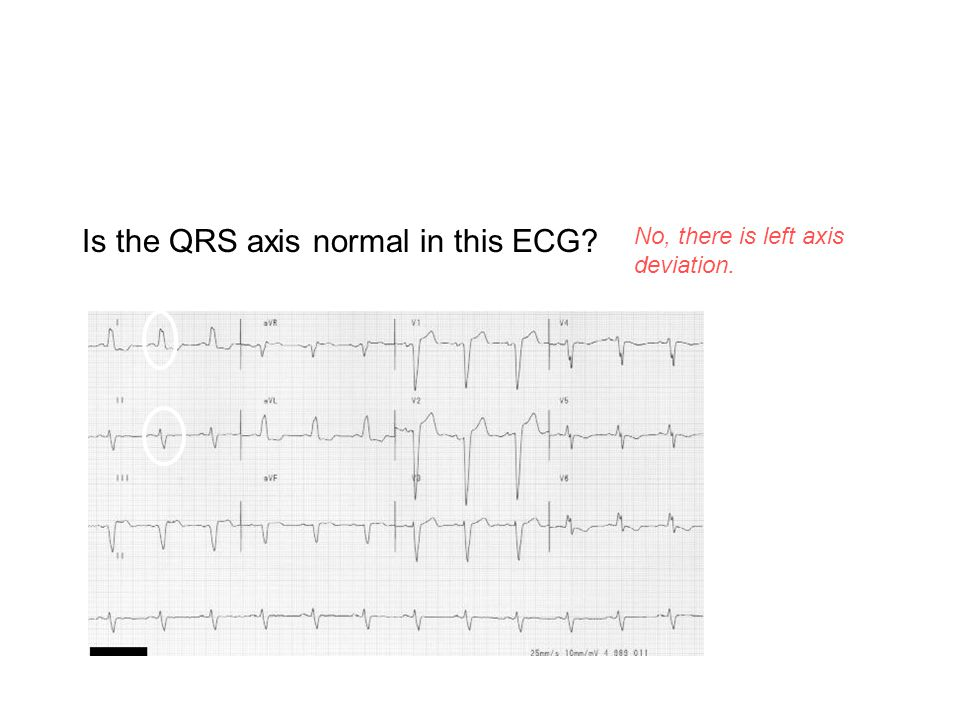 Is the QRS axis normal in this ECG