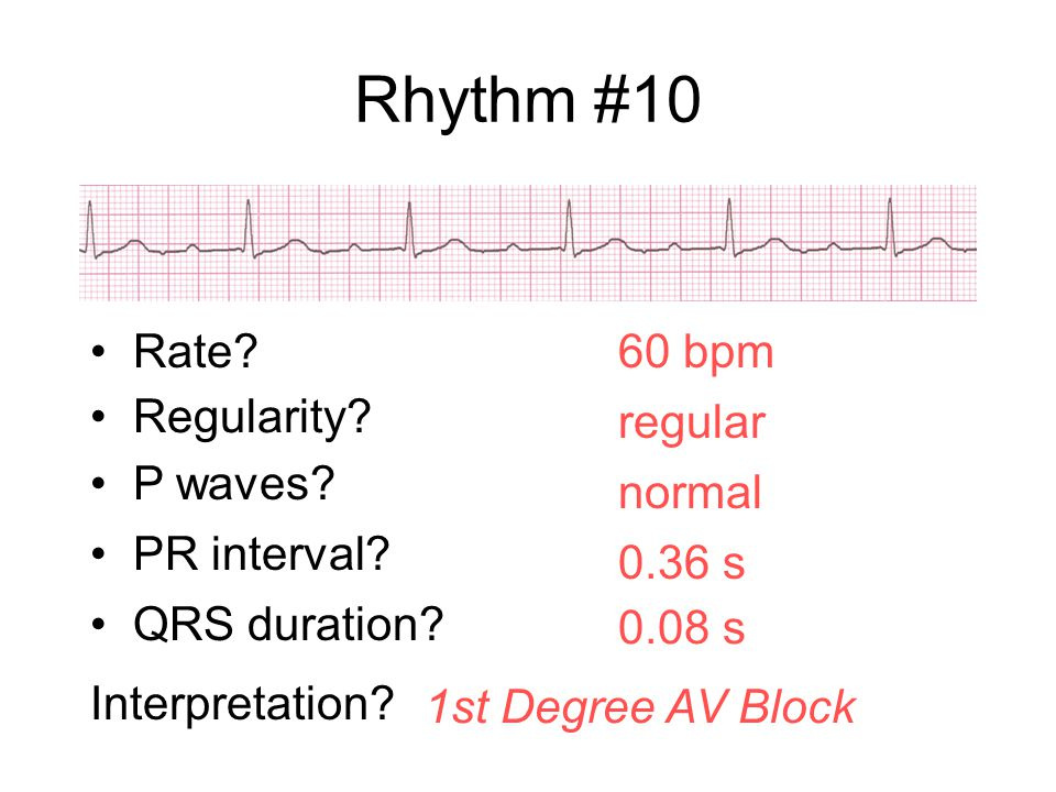 Rhythm #10 Rate 60 bpm Regularity regular P waves normal