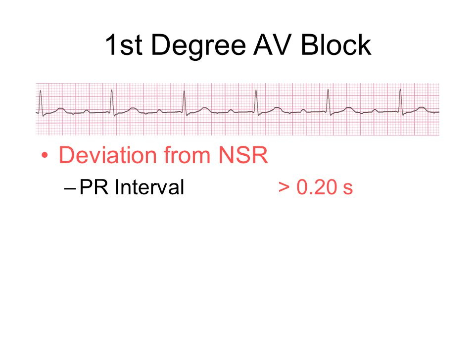 1st Degree AV Block Deviation from NSR PR Interval > 0.20 s