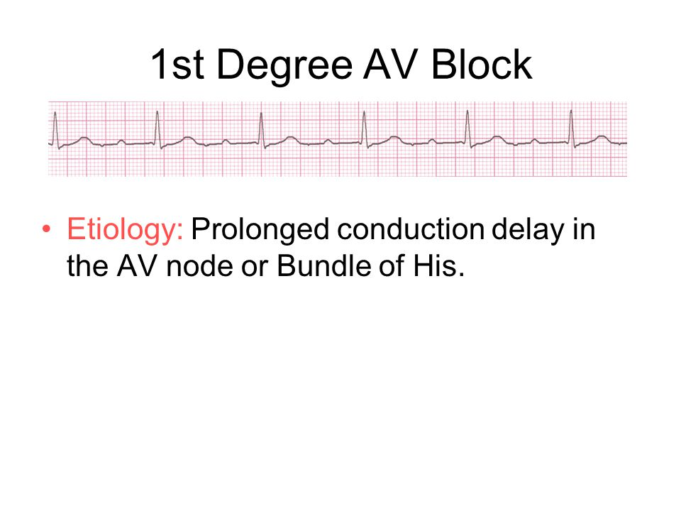 1st Degree AV Block Etiology: Prolonged conduction delay in the AV node or Bundle of His.