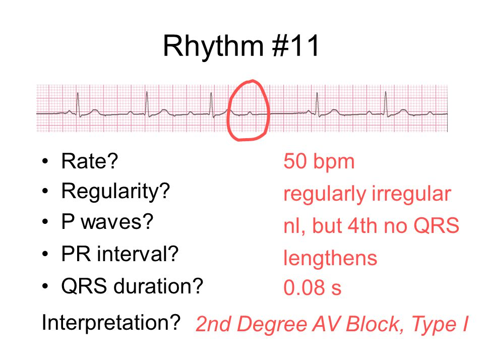Rhythm #11 Rate 50 bpm Regularity regularly irregular P waves