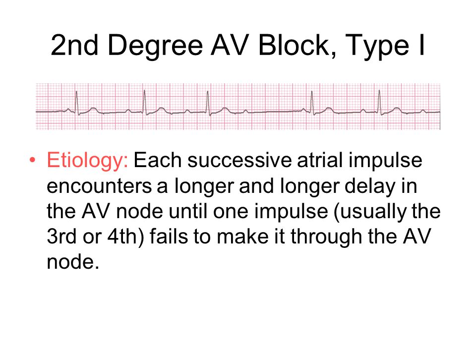 2nd Degree AV Block, Type I