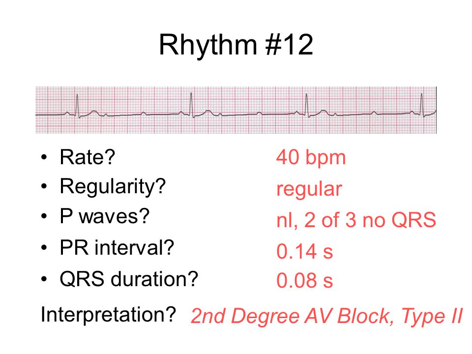Rhythm #12 Rate 40 bpm Regularity regular P waves nl, 2 of 3 no QRS