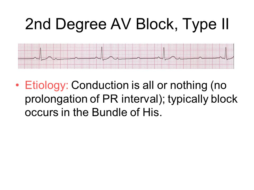 2nd Degree AV Block, Type II