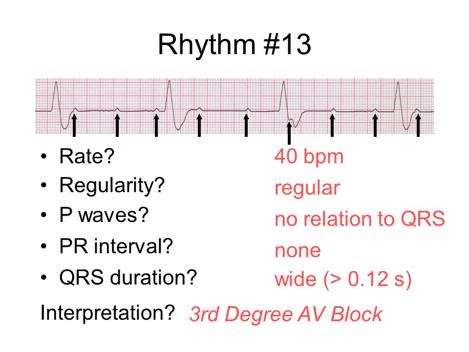 Rhythm #13 Rate 40 bpm Regularity regular P waves