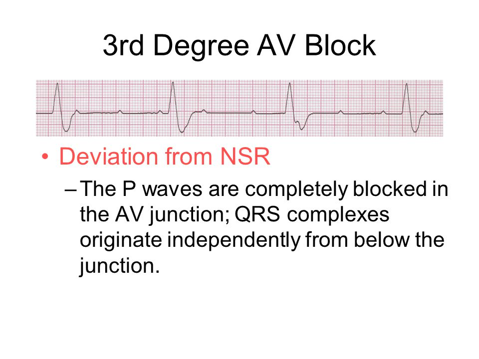 3rd Degree AV Block Deviation from NSR