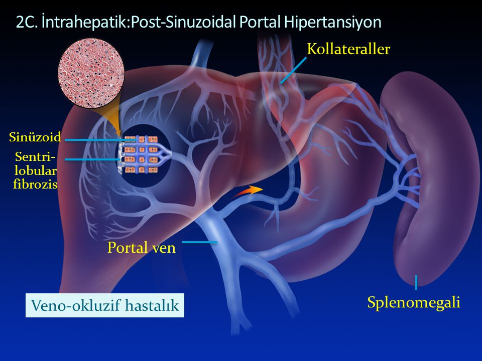 POST-SINUSOIDAL PORTAL HYPERTENSION