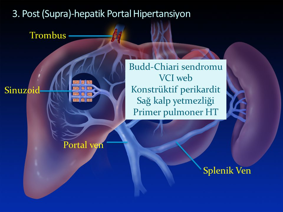 POST-HEPATIC PORTAL HYPERTENSION