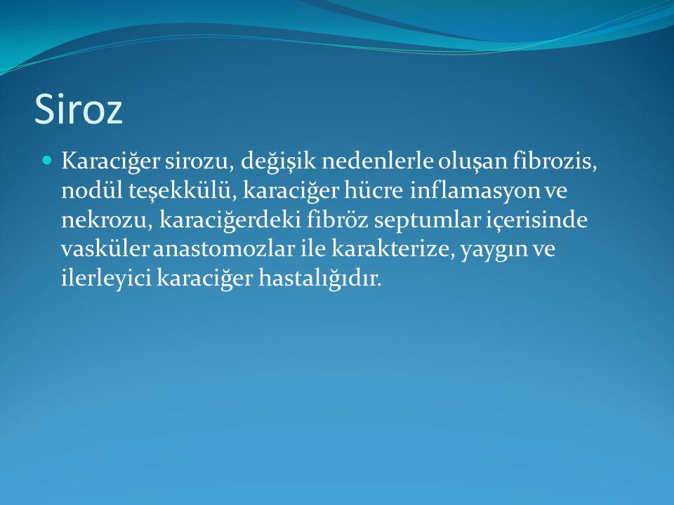 Siroz