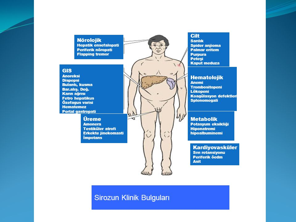 Sirozun Klinik Bulguları