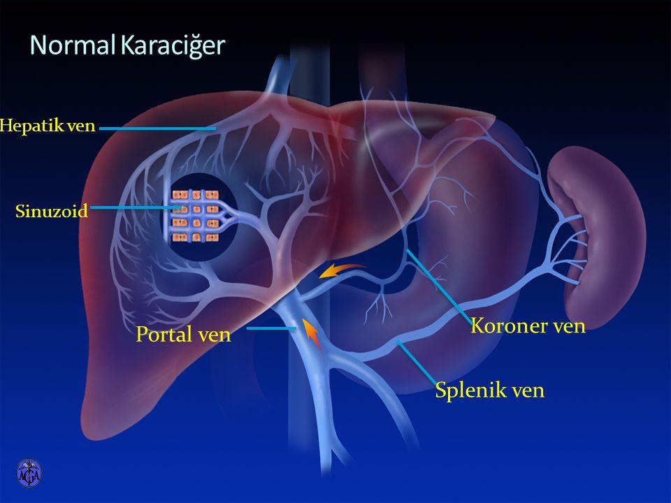 Normal Karaciğer Koroner ven Portal ven Splenik ven Hepatik ven