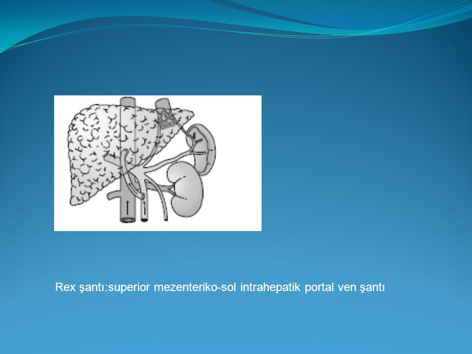 Rex şantı:superior mezenteriko-sol intrahepatik portal ven şantı