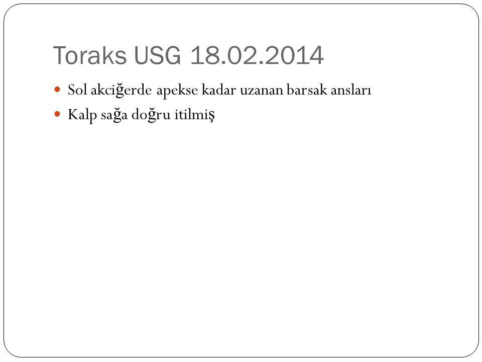 Toraks USG 18.02.2014 Sol akciğerde apekse kadar uzanan barsak ansları