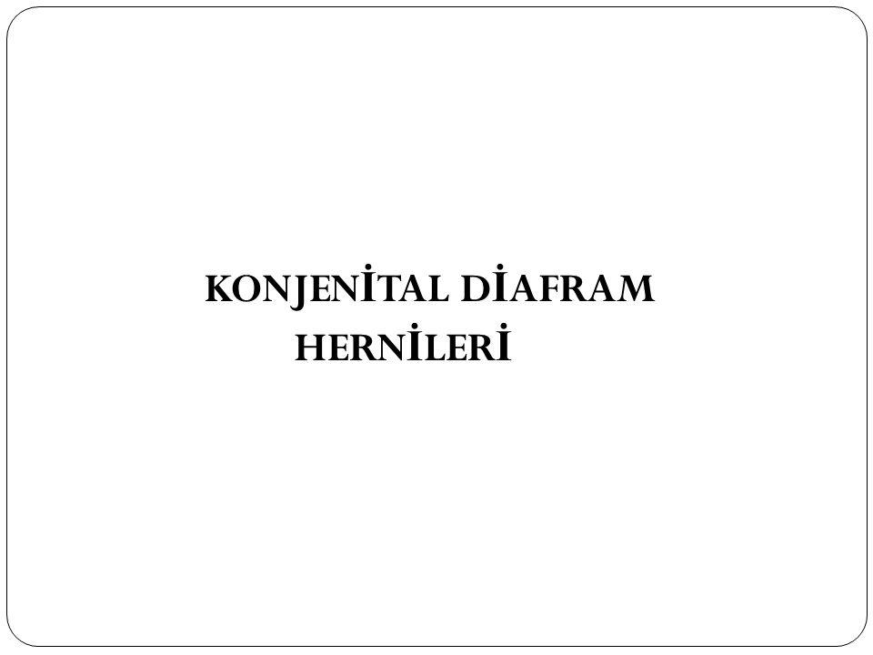 KONJENİTAL DİAFRAM HERNİLERİ