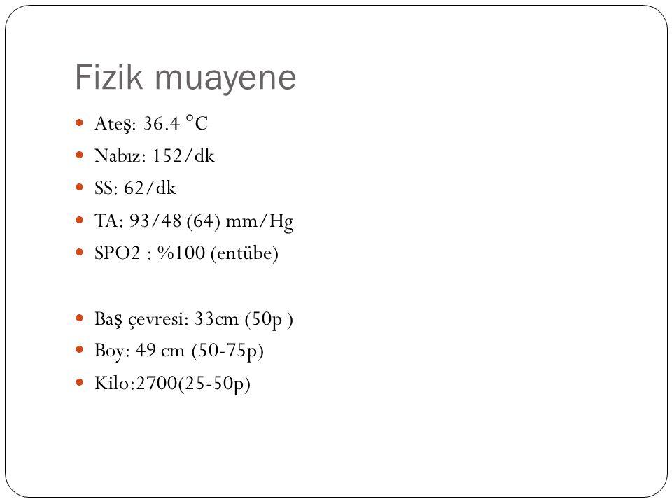 Fizik muayene Ateş: 36.4 °C Nabız: 152/dk SS: 62/dk
