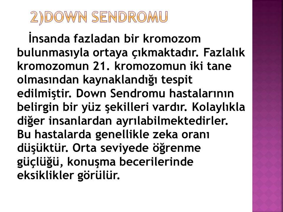 2)DOWN SENDROMU bulunmasıyla ortaya çıkmaktadır. Fazlalık