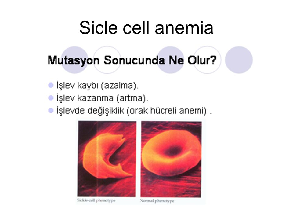 Sicle cell anemia