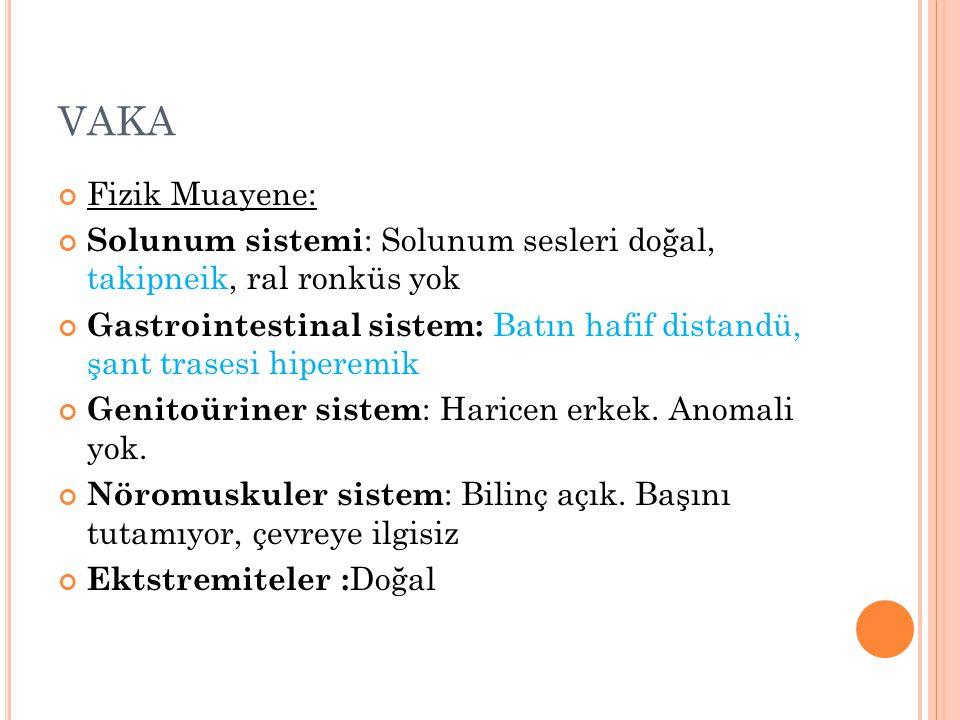 VAKA Fizik Muayene: Solunum sistemi: Solunum sesleri doğal, takipneik, ral ronküs yok.