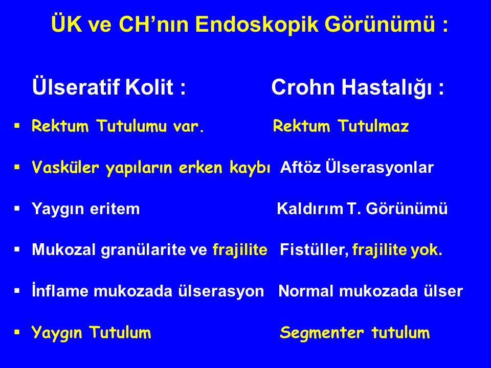 ÜK ve CH'nın Endoskopik Görünümü :