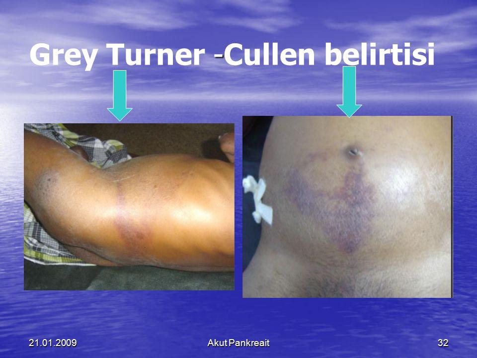 Grey Turner -Cullen belirtisi