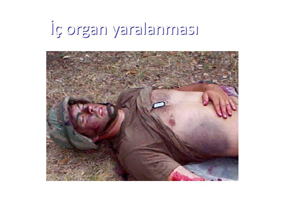 İç organ yaralanması